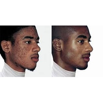 Peeling Ácido Mandélico - Pele Negra Ou Oriental - Manchas
