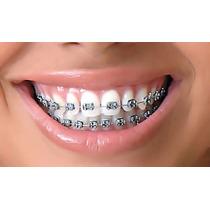 Kit Ortodontico Com 2 Aparelhos + Cola +fios + Borrachinhas