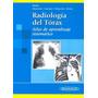 Manual De Diagnóst De Radiol Torax De Hofer