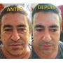 Rejuvenecedor Facial Instântaneo - Instantly Ageless