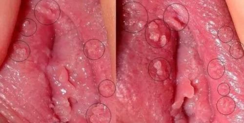 Acidos Para Remoção De Verrugas Genitais Hpv Condilomas