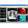 Ginkgo Cadx Pro- Software P/examinar Fotos Vídeos Pacientes