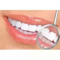 Gel Clareador Dental White Class 7,5% - Claream Frete Grátis
