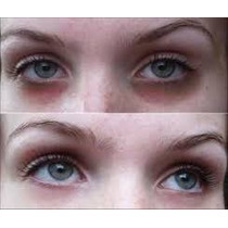 Serum Clareador Olheiras Escuras Redutor Bolsa Sob Olhos