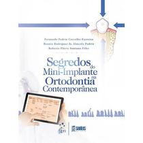 Ebook Segredos Do Mini-implante Na Ortodontia