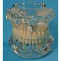 Implante Manequim Modelo Odontológico Completo Frete Gratis