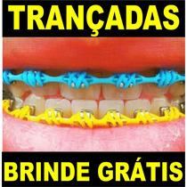 Borrachinhas Trançadas De Aparelho - 8 Pares + Brinde !!!