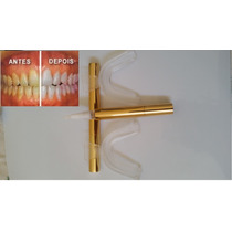 Kit Clareamento Dentario Com Moldeiras Mais Caneta Clareador