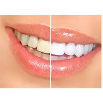 Caneta Whiteness Pen Branqueador Dental Clareamento Dentes
