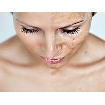 Peeling Ácido Glicólico - Rugas, Manchas Cicatrizes De Acne
