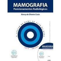 Mamografia Posicionamentos Radiológicos