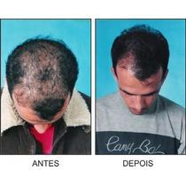 Shampoo Kative, Contra Caspa, Calvície E Queda Dos Cabelos