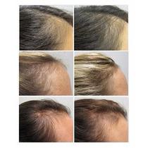Viviscal Shampoo Para Calvície Alopécia Queda De Cabelos